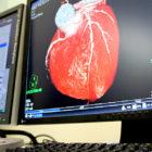 CT、MRI撮影などの紹介