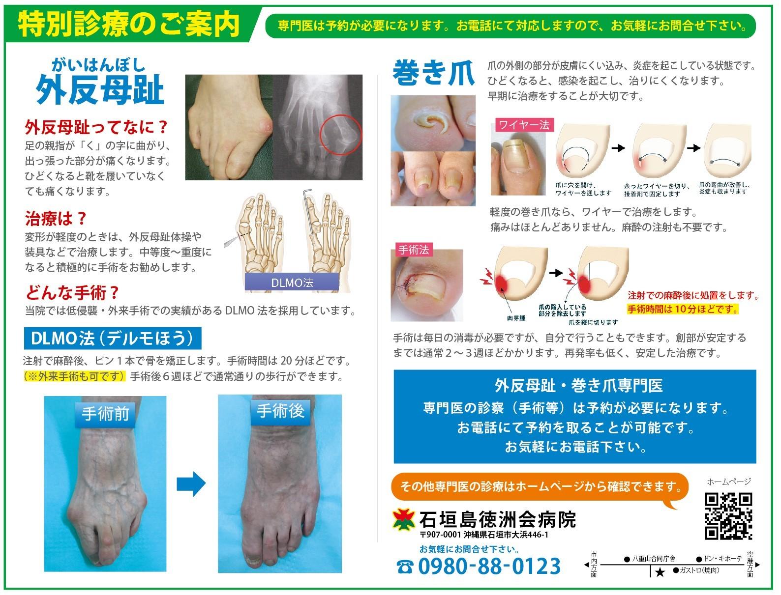 整形外科 外反母趾・巻き爪の案内